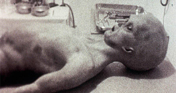Roswell Autopsy